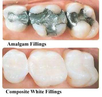 Dental services family dentistry gentle dentistry mn the difference between an arch with silver fillings and an arch with white bonded filling replacements is remarkable your smile will immediately brighten solutioingenieria Images