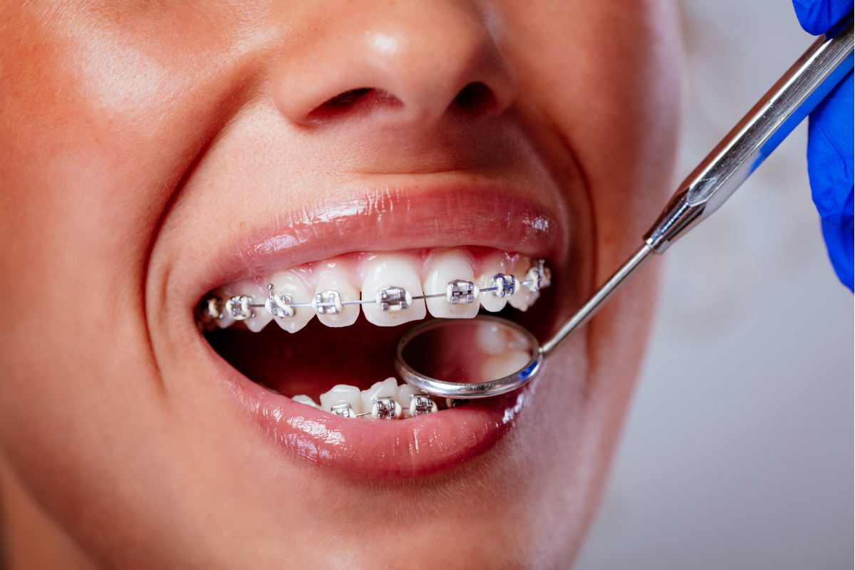 Do Braces Hurt? Tips to Ease Pain From Braces